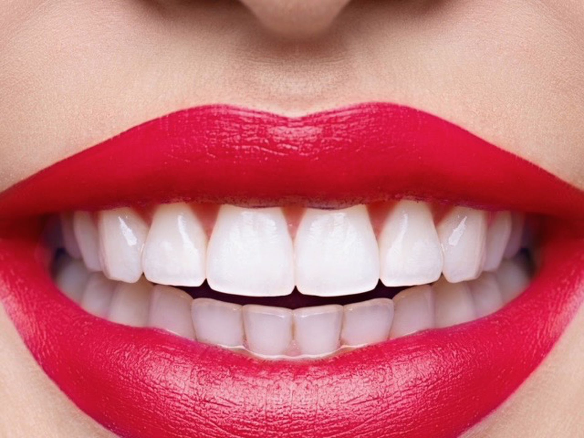 Mobile Teeth Whitening Business For Sale